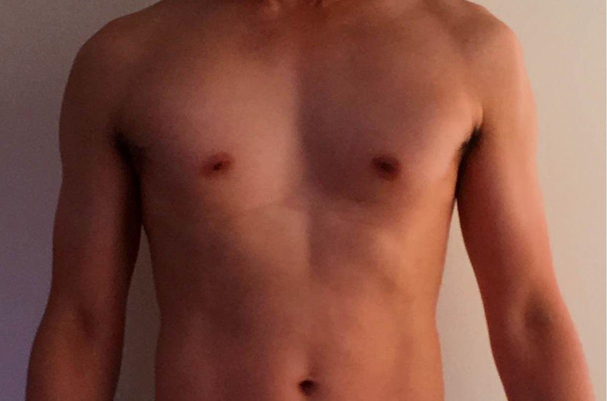 漏斗胸改善の筋トレ成果画像