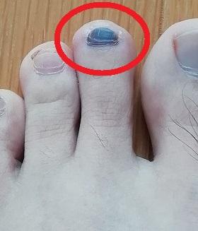 マラソン完走後の足の指が内出血