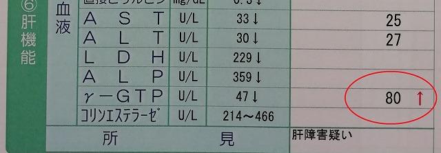 ガンマGTPの値が80になった画像